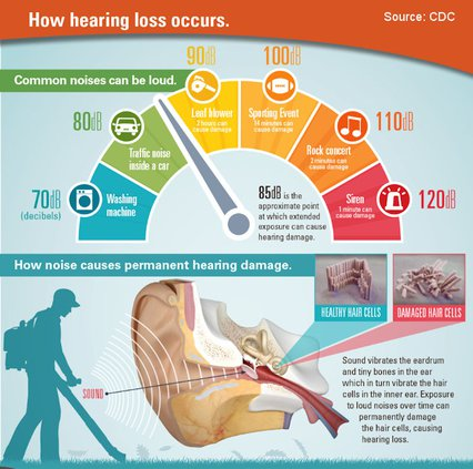 extension hearing chart